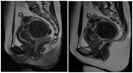 术前MRI提示多发子宫肌瘤
