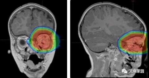 质子疗法治疗视网膜母细胞瘤示意图