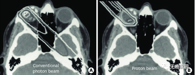 质子治疗和光子治疗对比