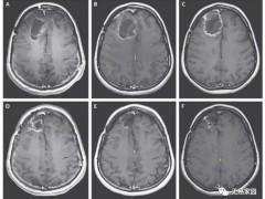 胶质瘤疫苗,AV-GBM-1树突细胞疫苗数据惊艳