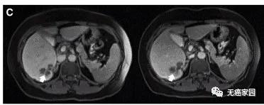 通过MRI观察到患者P10的一个肝脏病变发生萎缩
