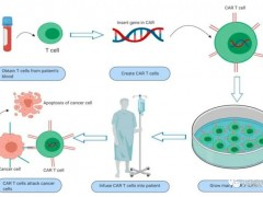 多种新型靶标结直肠癌CAR-T疗法:CYAD-01、CEA CAR-T、EpCAM(CD326) CAR-T、GUCY2C CAR-T抗癌效果翻倍