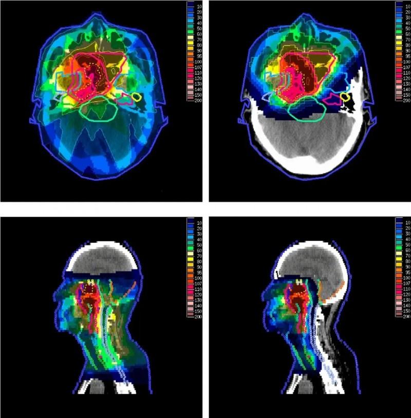 髓母细胞瘤质子治疗和传统放疗对比