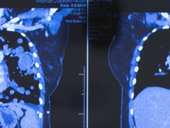 儿童软组织肉瘤靶向药拉罗替尼为患者延长了生命、提高了生活质量