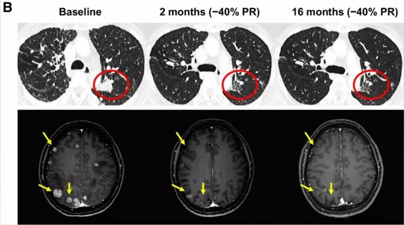 Repotrectinib治疗克唑替尼耐药的非小细胞肺癌效果
