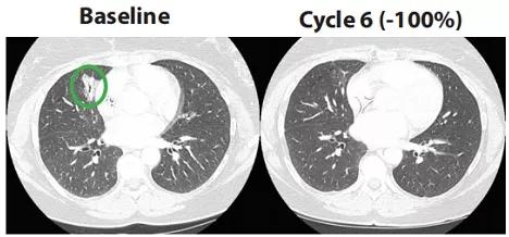 Repotrectinib治疗晚期肺癌完全缓解