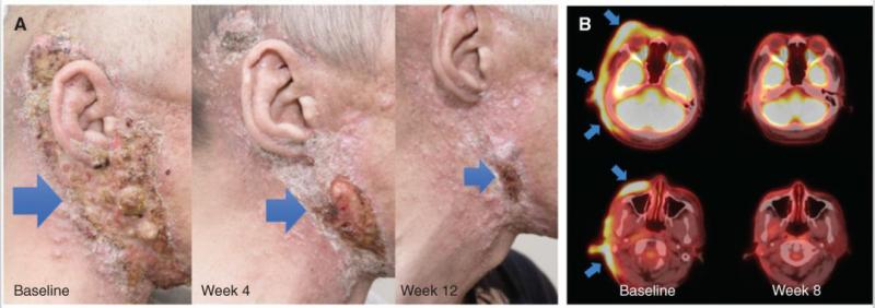 Repotrectinib治疗NTRK融合的分泌性唾液腺癌效果