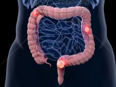 结直肠癌靶向药物,NTRK靶向药拉罗替尼成为抗癌新星