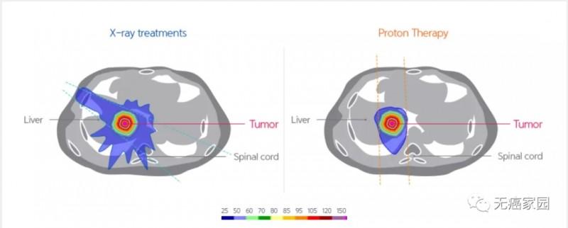 X射线与质子疗法治疗肝癌的比较