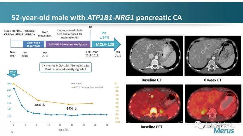 Zenocutuzumab治疗胰腺癌案例