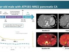 广谱抗癌药物,广谱抗肿瘤药物Zeno(MCLA-128、Zenocutuzumab)强效抗癌横空出世