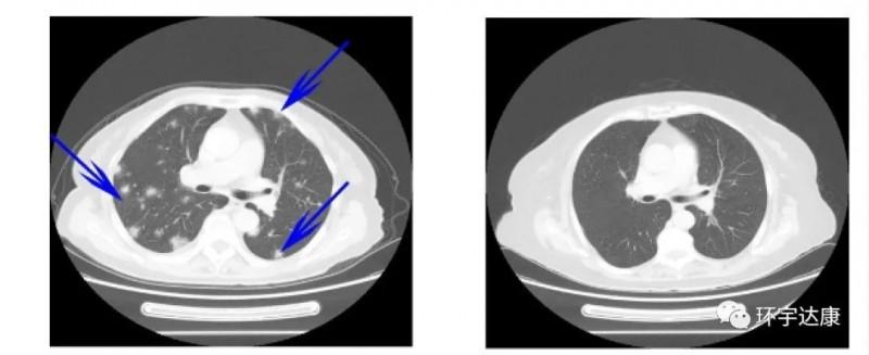 TILs联合PD-1治疗骨肉瘤前后对比