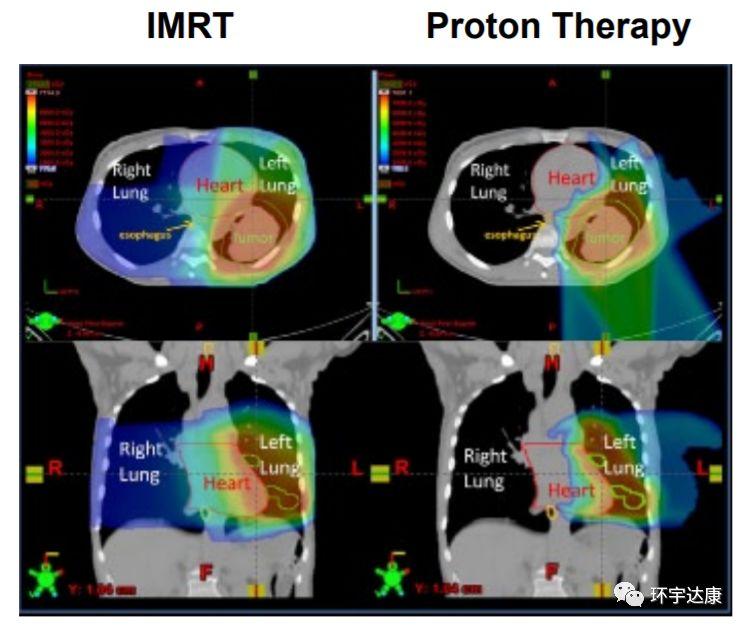 质子治疗和传统放疗辐射范围对比