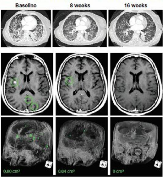 拉罗替尼治疗晚期肺癌脑转移的效果