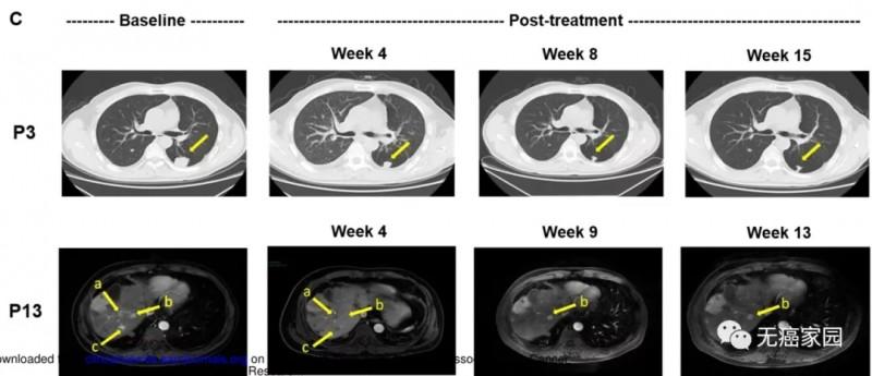 car-t细胞疗法治疗肝癌前后对比