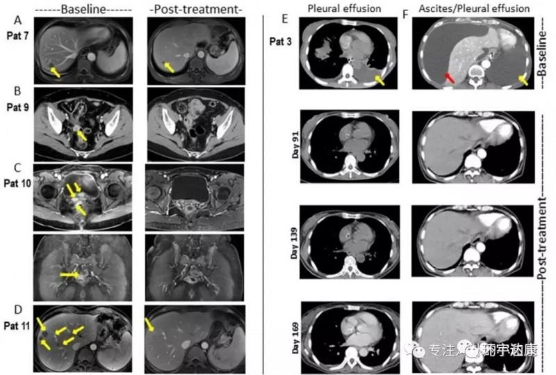Claudin18.2的实体瘤CAR-T疗法治疗胃癌效果