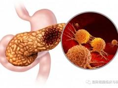 胰腺癌为什么难治,胰腺癌新药、胰腺癌靶向药物和胰腺癌免疫治疗药物研究进展盘点