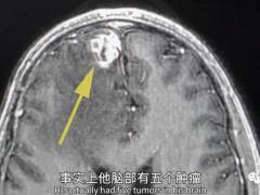 CAR-T细胞疗法,致命脑瘤胶质母细胞瘤CAR-T细胞治疗后5个肿瘤全消失了