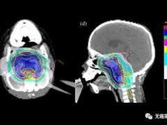 脊索瘤质子治疗,颅底软骨肉瘤质子治疗,颅底锁骨脊索瘤质子放射治疗
