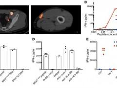新型细胞免疫疗法,黑色素肿瘤TIL疗法有望上市