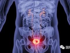 3种常见膀胱癌的治疗方法和6种FDA批准的膀胱癌免疫治疗方案