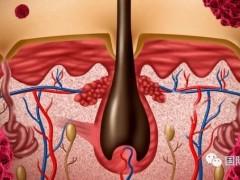 癌症肿瘤细胞免疫疗法治疗的原理,黑色素瘤免疫治疗方案