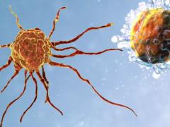 脑瘤疫苗,新型肿瘤DC疫苗AV-GBM-1让脑胶质母细胞瘤患者曙光重现