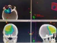 胶质母细胞瘤质子治疗成功案例,质子治疗胶质母细胞瘤效果良好