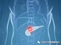 质子治疗胰腺癌成功案例分享