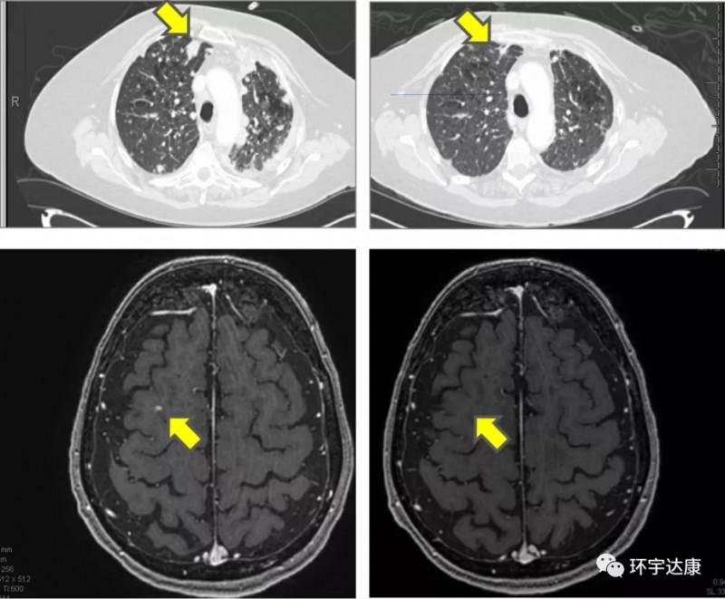 Adagrasib治疗非小细胞肺癌的效果