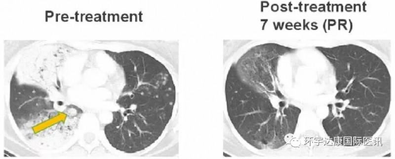 DS-6051b治疗克唑替尼耐药的数据