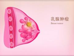 乳腺癌患者吃什么好,乳腺癌病人吃什么好,乳腺癌饮食建议值得收藏