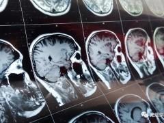 脑胶质瘤最新药物、最新技术、最新疗法