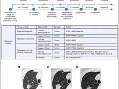 非小细胞肺癌靶向治疗案例,靶向治疗效果怎么样和有没有选对治疗方案关系很大