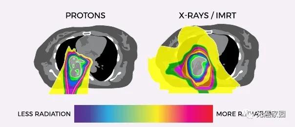 肺癌质子治疗和传统放疗对比