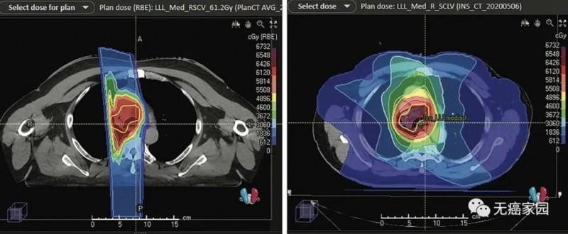 局限性小细胞肺癌质子治疗和传统放疗对比