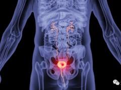 膀胱癌免疫治疗,细胞免疫疗法MASCT-I序贯治疗膀胱癌打破膀胱癌难治困境