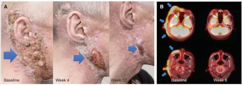 TPX-0005治疗NTRK融合的分泌性唾液腺癌效果