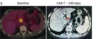 CAR-T细胞免疫疗法治疗晚期胰腺癌的效果