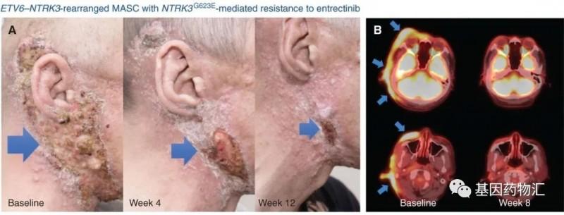 瑞波替尼治疗涎腺类乳腺分泌性癌的效果